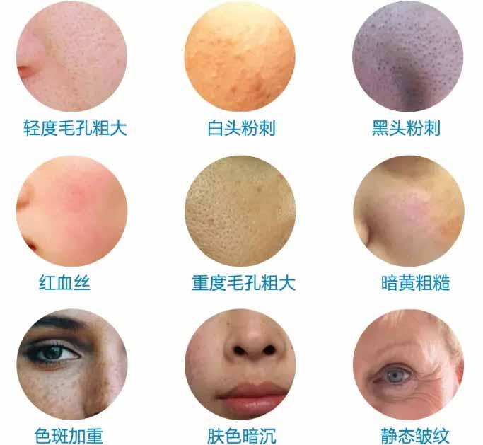 上海美莱收缩毛孔好不好