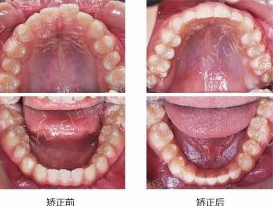 上海美莱牙齿矫正案例