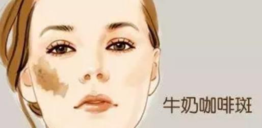 上海美莱治疗咖啡斑效果怎么样