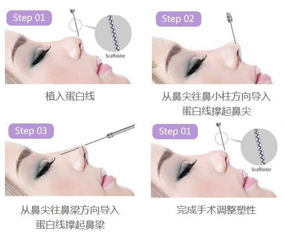 上海美莱线雕隆鼻的优势