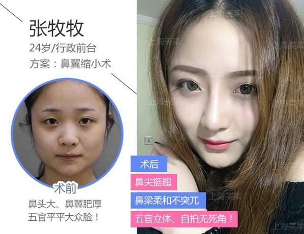 上海美莱做鼻翼缩小效果好不好