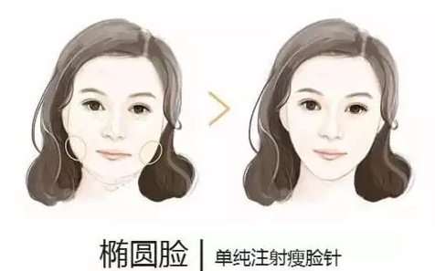 上海美莱注射瘦脸好不好
