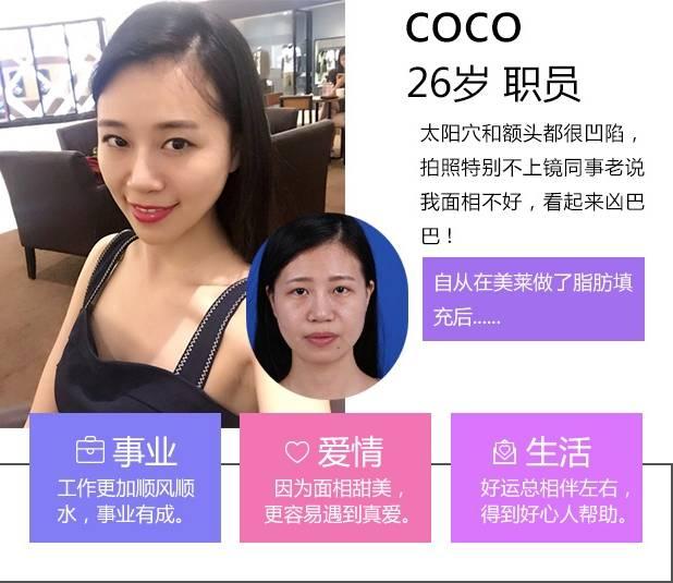 上海美莱自体脂肪面部填充案例