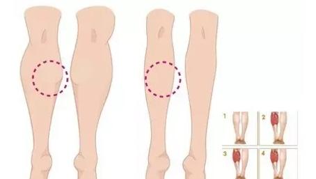 打瘦腿针的危害大吗