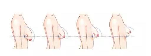 巨乳缩小手术有风险吗