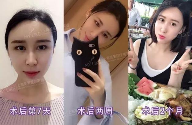 上海美莱自体脂肪面部填充效果图