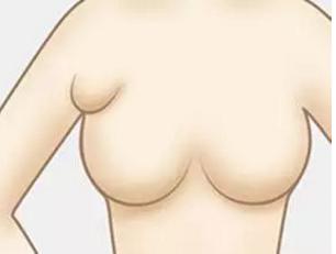 副乳怎么消除才正确