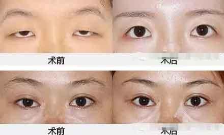 上眼睑下垂手术成功率有多大