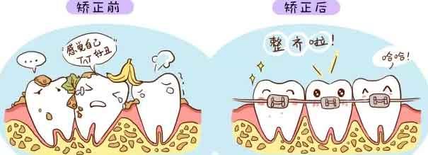 成人还能矫正牙齿么