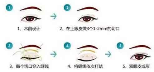 上海美莱韩式双眼皮手术好不好