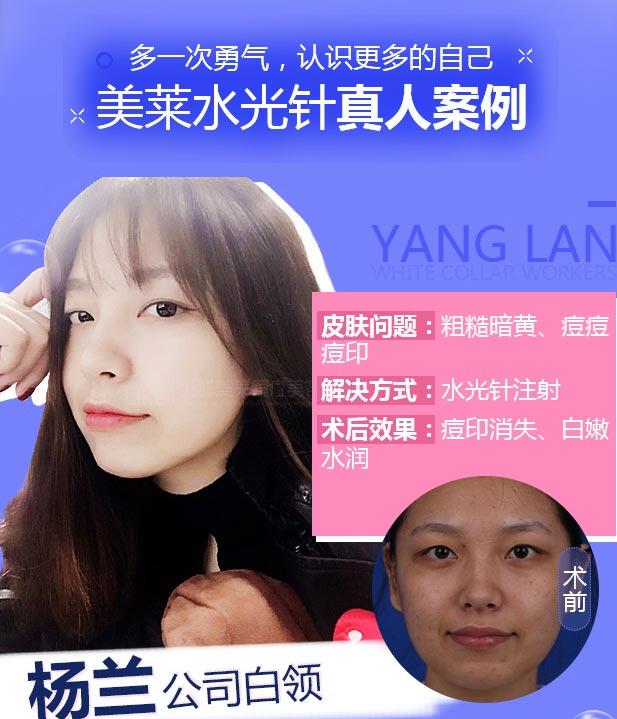 上海美莱水光针真实案例