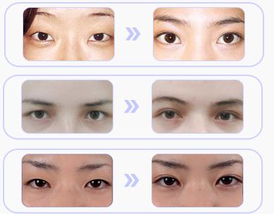 上海双眼皮失败修复一般多少钱