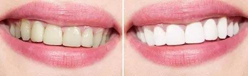 牙齿美白有哪些注意事项
