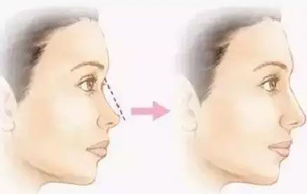 线雕隆鼻要多久可以恢复