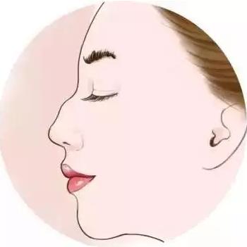 驼峰鼻怎么进行矫正