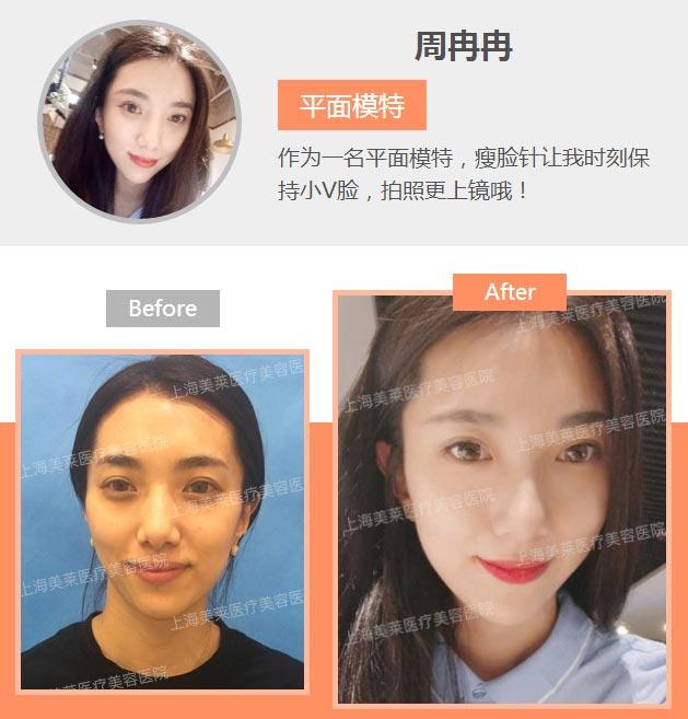 上海美莱注射瘦脸前后对比图