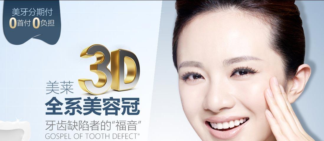 上海美容冠矫正牙齿价格表