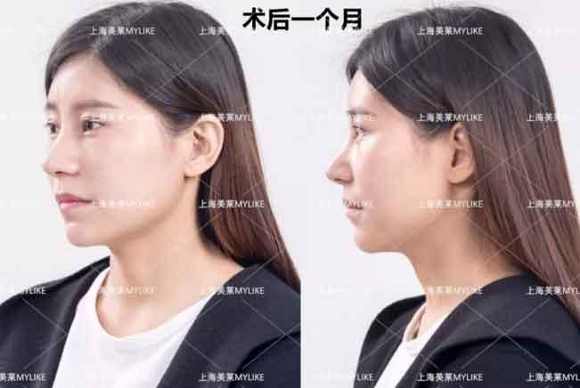 上海美莱鼻修复术后一周