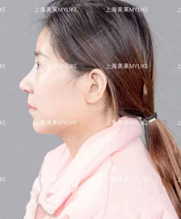 上海美莱鼻修复前后对比图