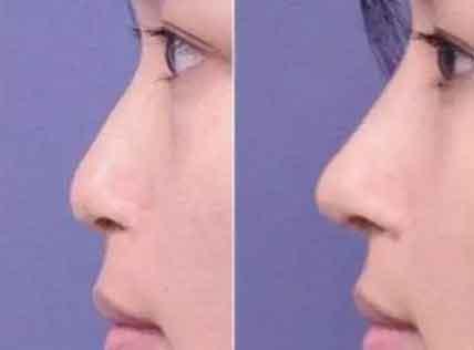耳软骨垫鼻尖后遗症有吗