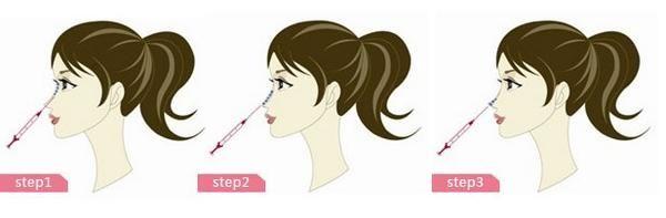 注射隆鼻注意事项有哪些