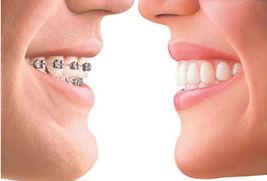 牙齿矫正会痛吗