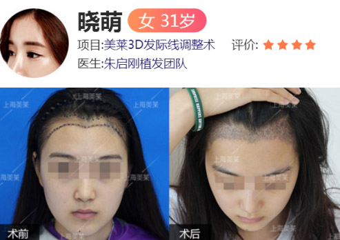 上海美莱植发案例