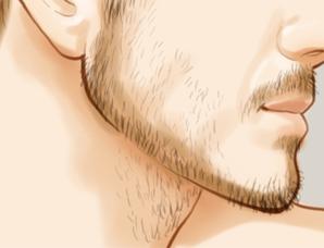 上海络腮胡子激光脱毛效果怎么样