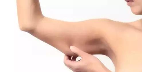 上海蝴蝶臂吸脂多少钱