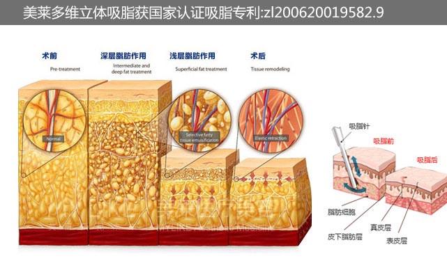 上海如何快速瘦大腿上肉