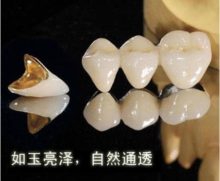 上海做一颗烤瓷牙多少钱一颗