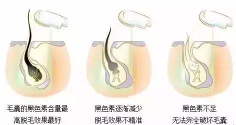 上海美莱络腮胡子激光脱毛怎么样