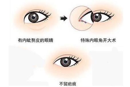 上海美莱开眼角疼不疼