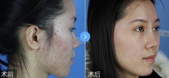 上海美莱医疗美容做痘坑痘印修复吗