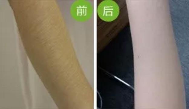 上海美莱激光脱毛案例