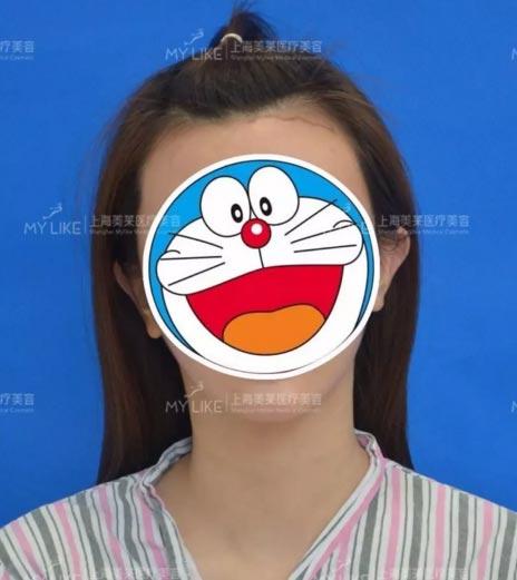 上海美莱发际线种植案例术前照