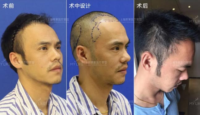 上海美莱发际线种植案例