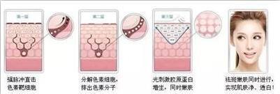 上海美莱激光打雀斑会很痛么