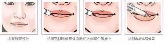 美丽性感嘟嘟唇,上海美莱玻尿酸丰唇¥688限时抢
