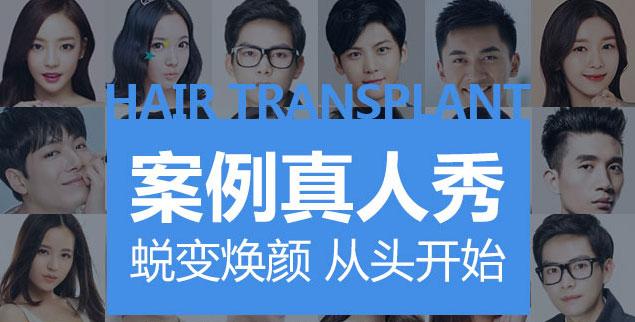 上海哪里可以移植毛发