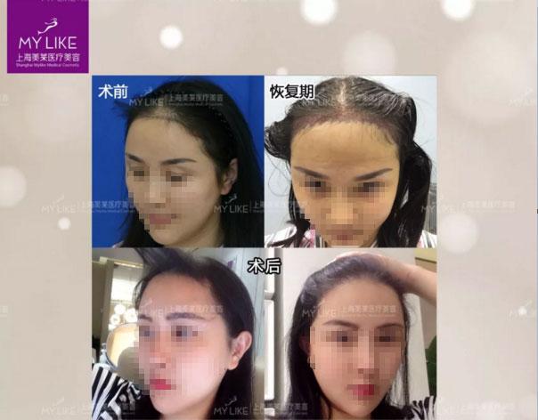 上海美莱毛发种植真人案例