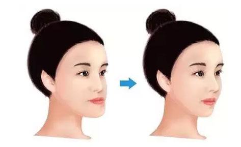上海牙齿矫正会改变脸型么