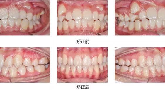 上海牙齿矫正手术哪家好
