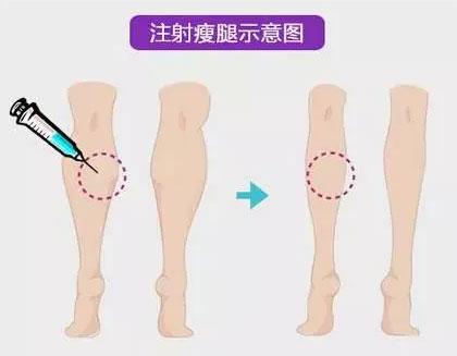 上海美莱打过瘦腿针后注意事项