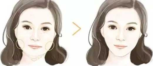 上海美莱瘦脸针告别大饼脸,全场优惠980
