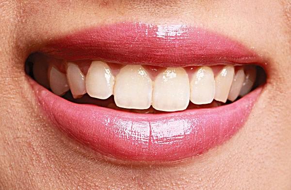 上海美莱烤瓷牙的优点有哪些