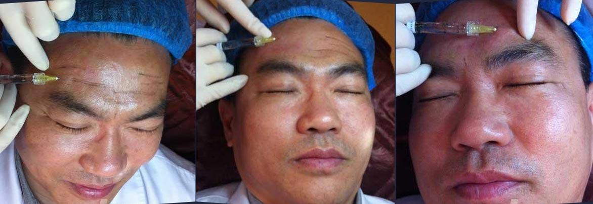 上海打玻尿酸医生哪个好