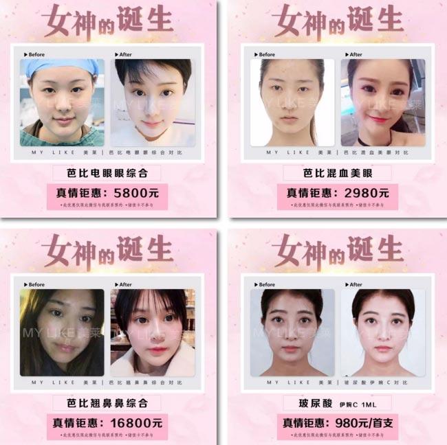上海美莱国际整形节,3月优惠大促,6大爆款5折