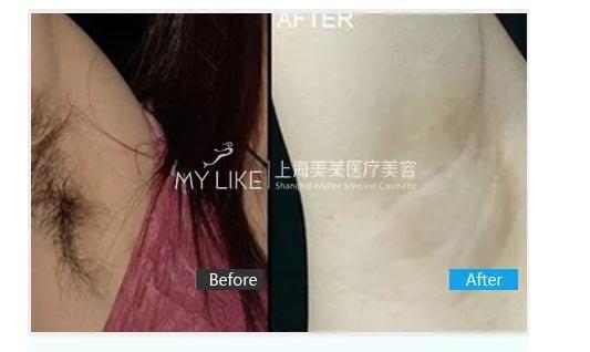 上海腋下脱毛有危害吗