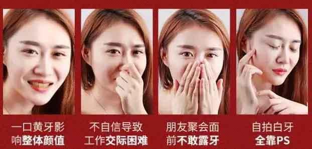 在上海做牙齿洗白要多少钱